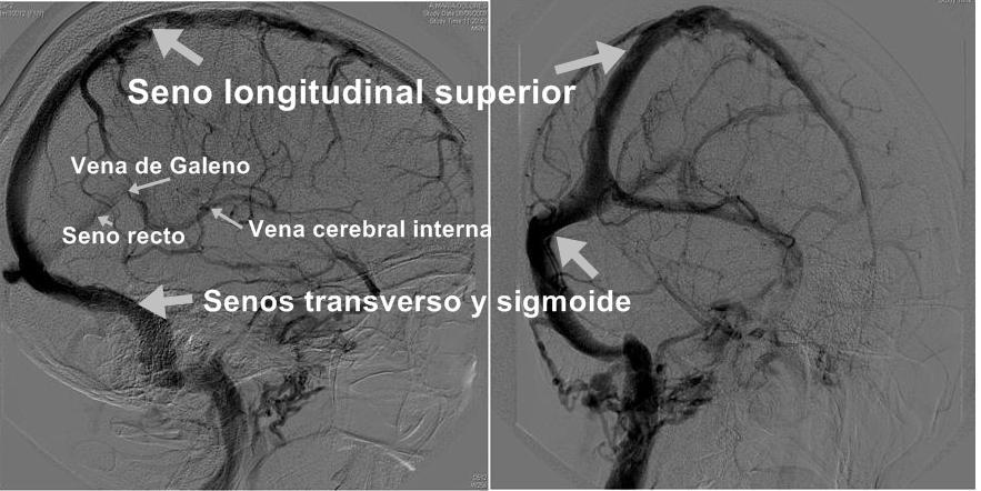 Sistema Venoso Cerebral | NeuroWikia