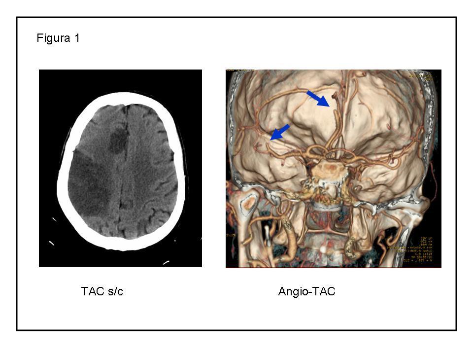 Ictus Cardioembólico   NeuroWikia