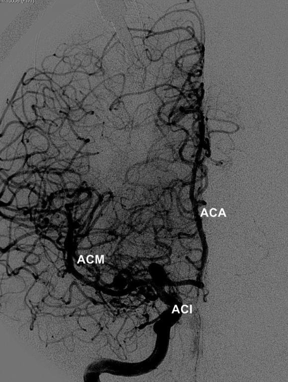 Sistema Arterial Cerebral | NeuroWikia