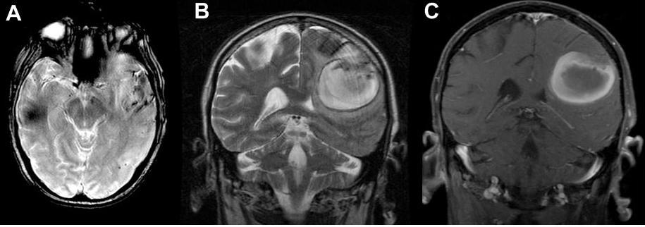 RM Craneal en patología vascular cerebral | NeuroWikia