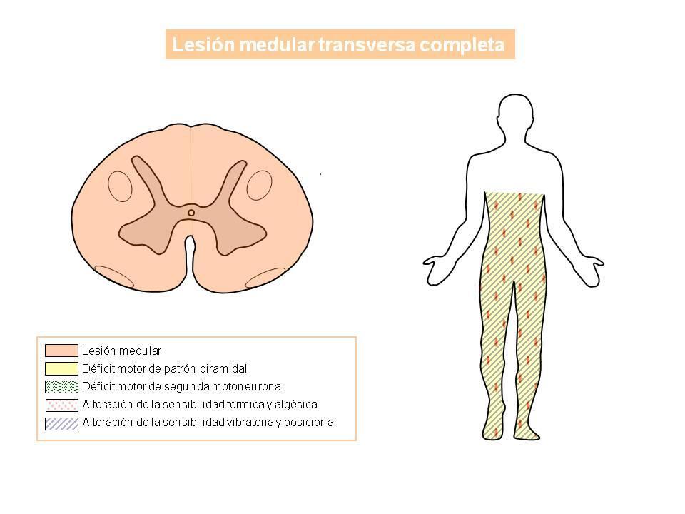 Lesión medular completa | NeuroWikia