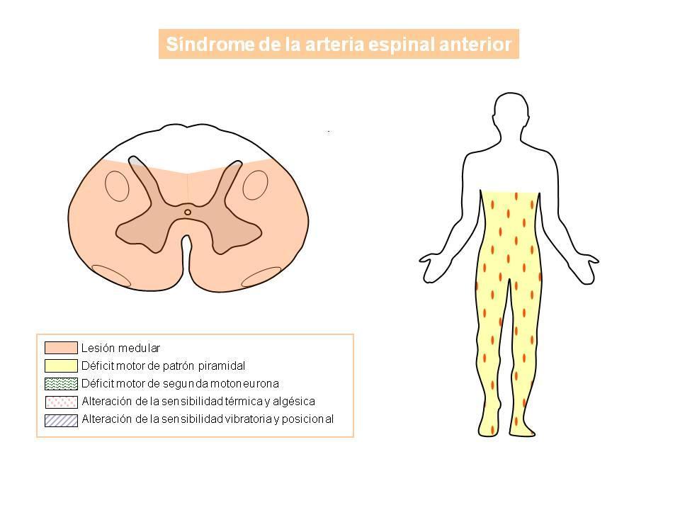 Síndromes de isquemia arterial medular | NeuroWikia